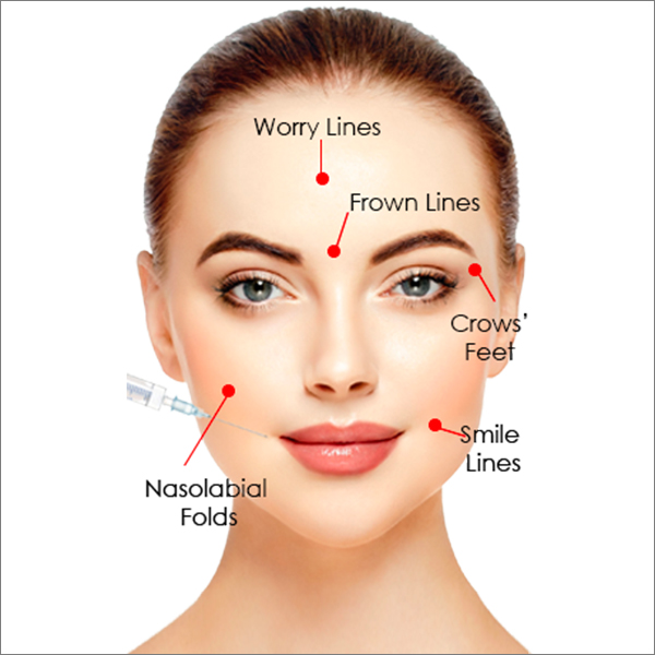 Anti-wrinkle Injections (Botox) Treatment at Laser Clinic Galway