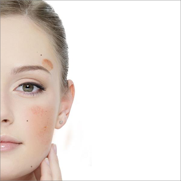 Pigment spots treatment