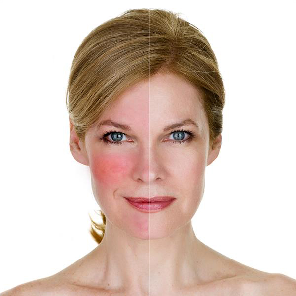 Rosacea treatment at Laser Clinic Galway