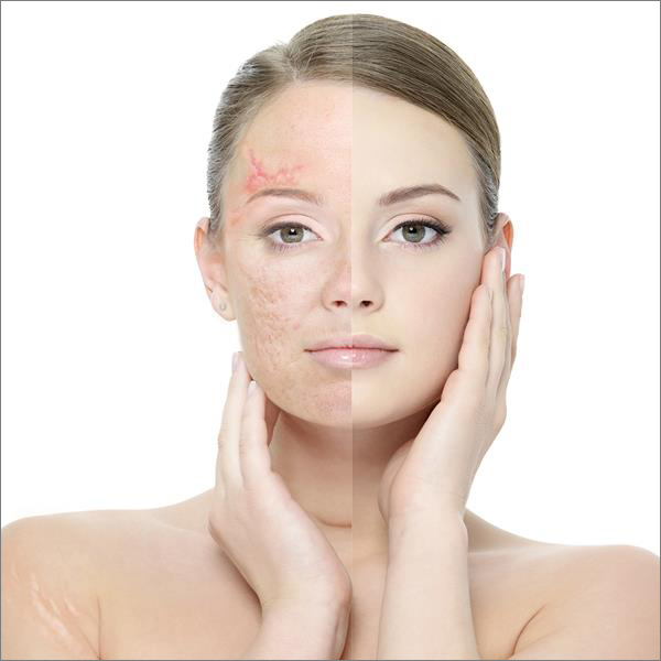 Scar, acne scars or stretch marks treatment at Laser Clinic Galway
