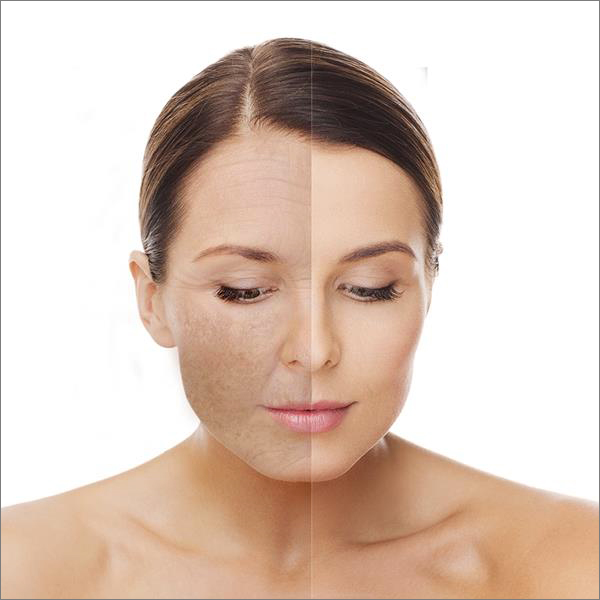 Skin resurfacing treatment at Laser Clinic Galway
