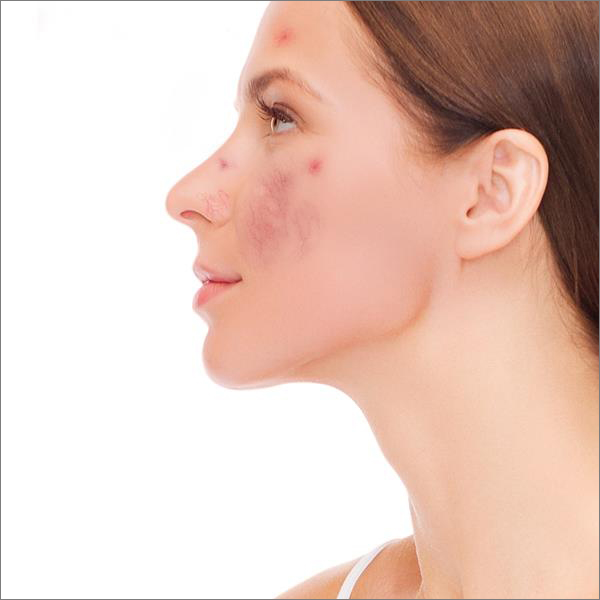 Facial thread veins image before the laser treatment