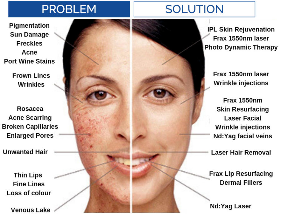 Skin problems and solutions IPL Skin Rejuvenation