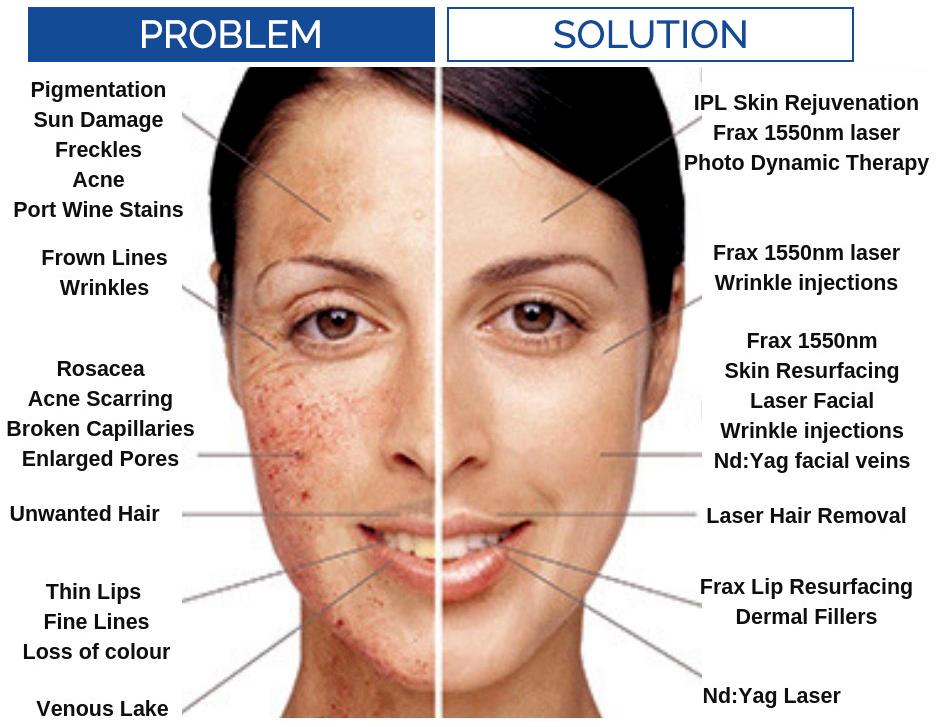 Skin problems and solutions IPL Skin Rejuvenation