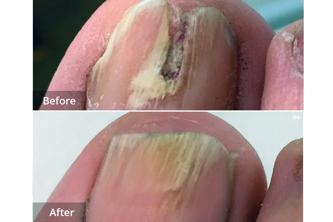 Neil fungus before and after laser treatment at Laser Clinic Galway.